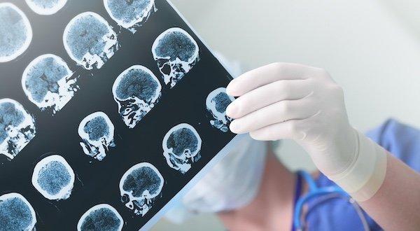 Aluminum Toxicity in the Brain